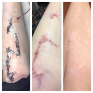 Days after surgery One year post op Two years post op